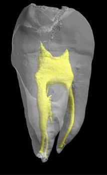 Modélisation 3D d'une dent.La pulpe dentaire est en jaune. ©Inserm/ Chappard, Daniel